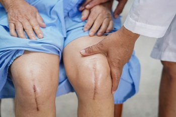 Woman With Scars From Knee Replacement Surgery