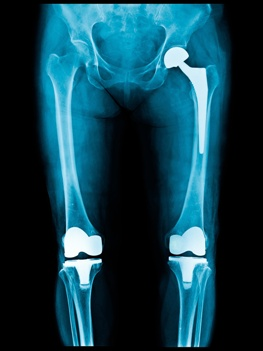Metal Knee and Hip Replacement Parts