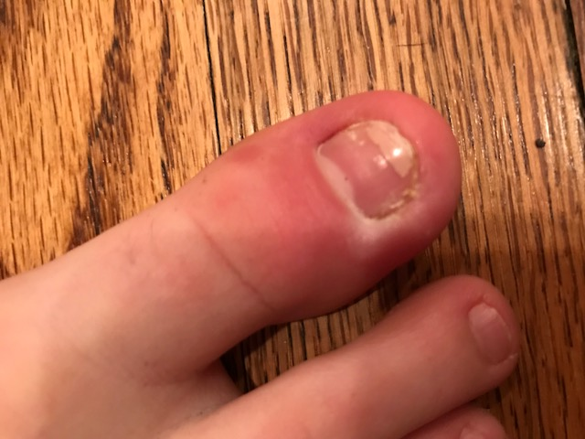 Toenail Health | Healthmark Foot & Ankle Associates