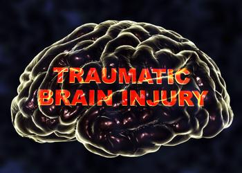 Kansas City personal injury lawyers for traumatic brain injuries