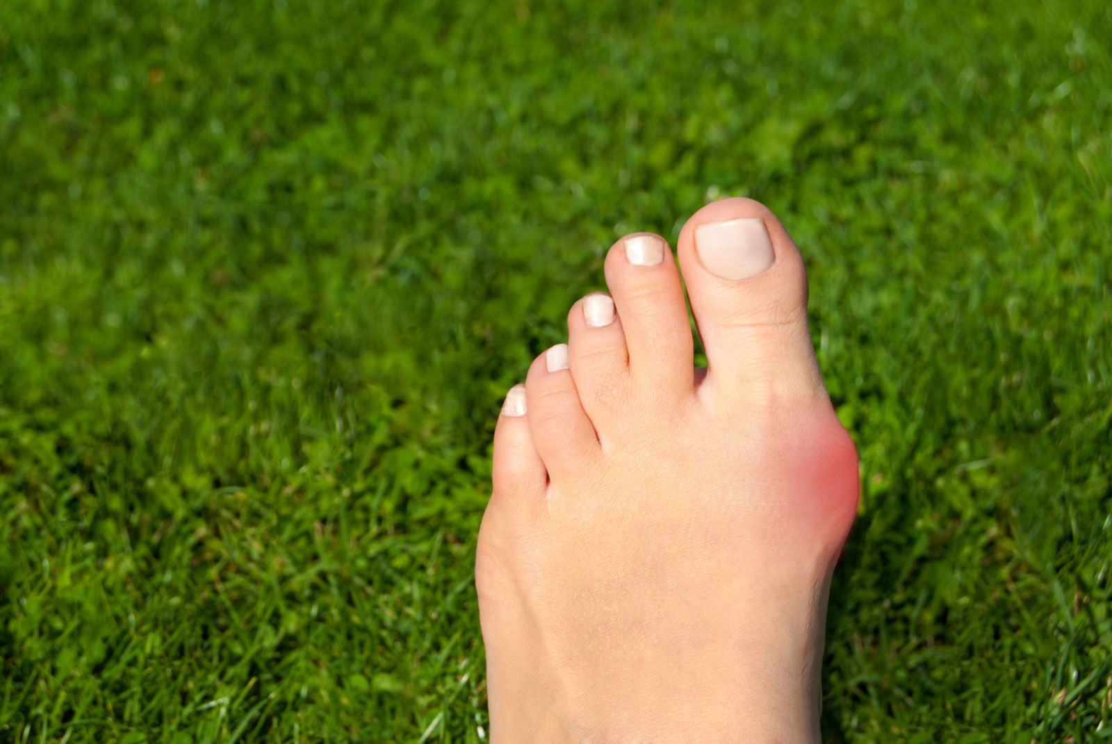 Bunion foot in grass