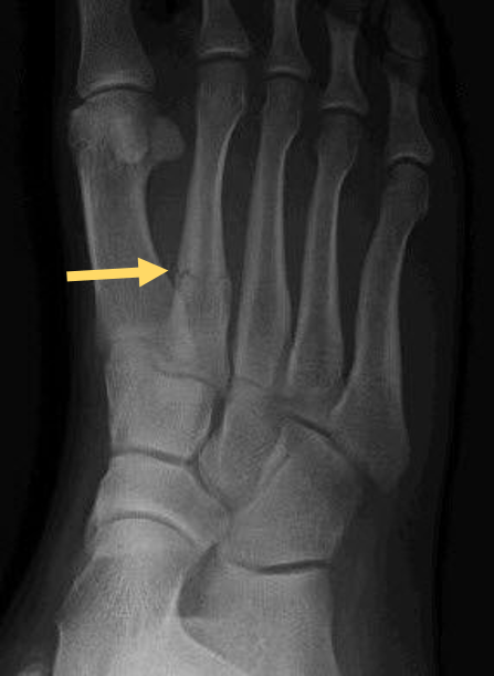 Fractures like this one are so small, you may be able to walk on them. But doing so could cause damage, so get any suspected injury X-rayed!