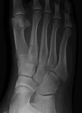 xray picture of fractured bone