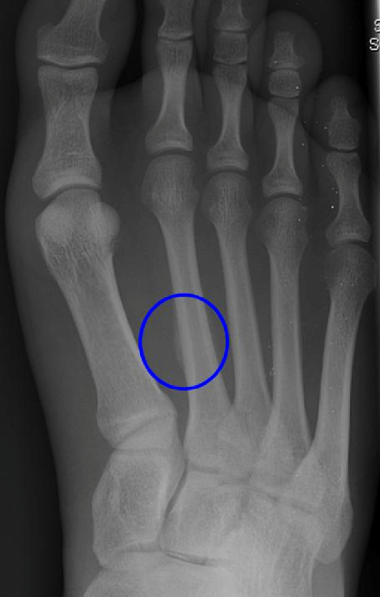 xray of a right foot with a blue circle around stress fracture