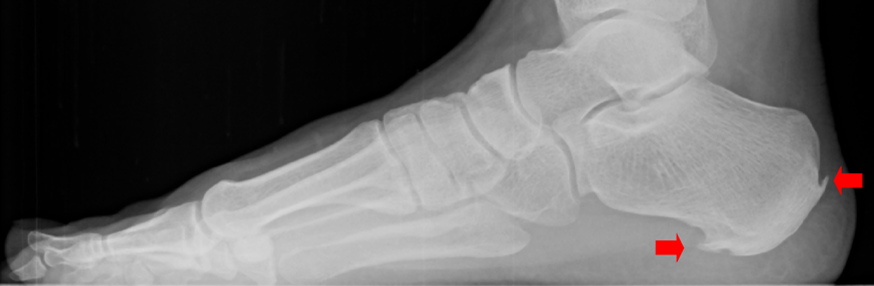 This x-ray reveals bone spur growth on the heel