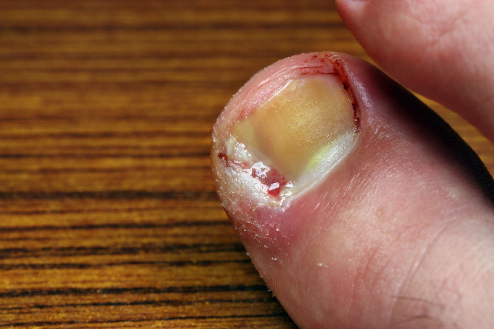 close up of an infected ingrown toenail