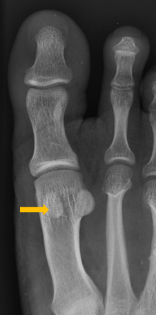 x-ray with yellow arrow pointing to small round bones in foot