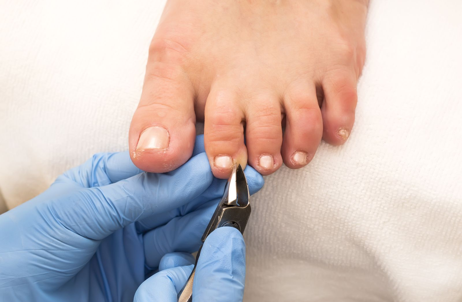 close up of medically gloved hands using a tool to nip the edge of a toenail