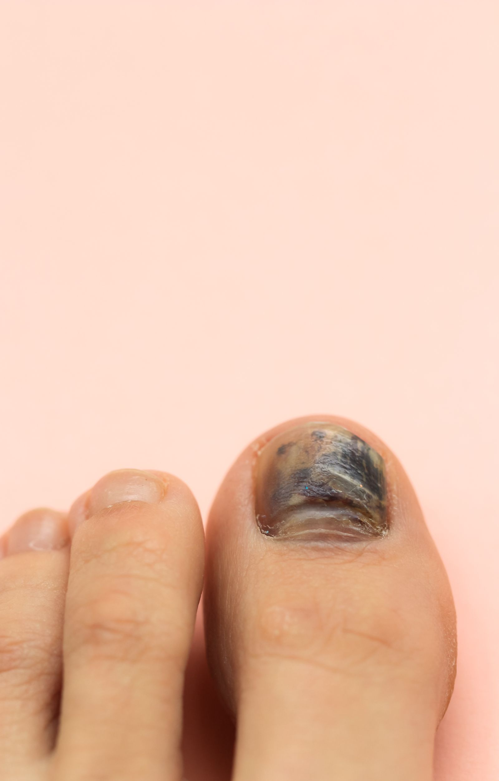 Did your toenail turn black after getting stubbed? It's time to see your podiatrist!