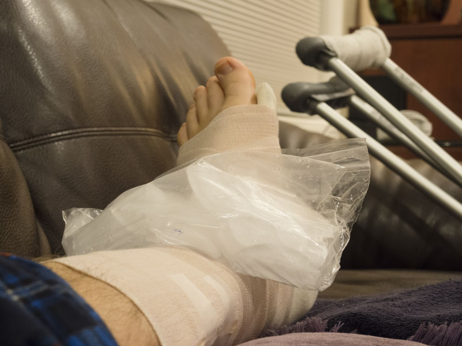 Picture of foot and leg in splint with ice and crutches