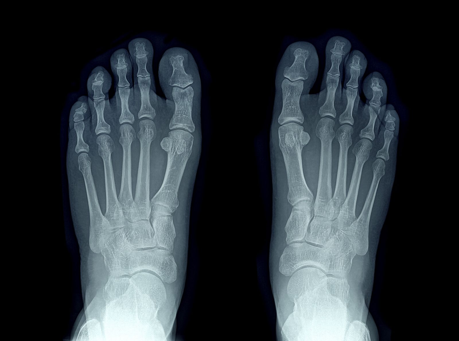 xray of two feet viewed from the top