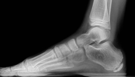 While foot fractures show up on X-rays, MRIs are required to diagnose a bone bruise