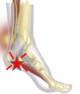 Picture of heel with star where pain is