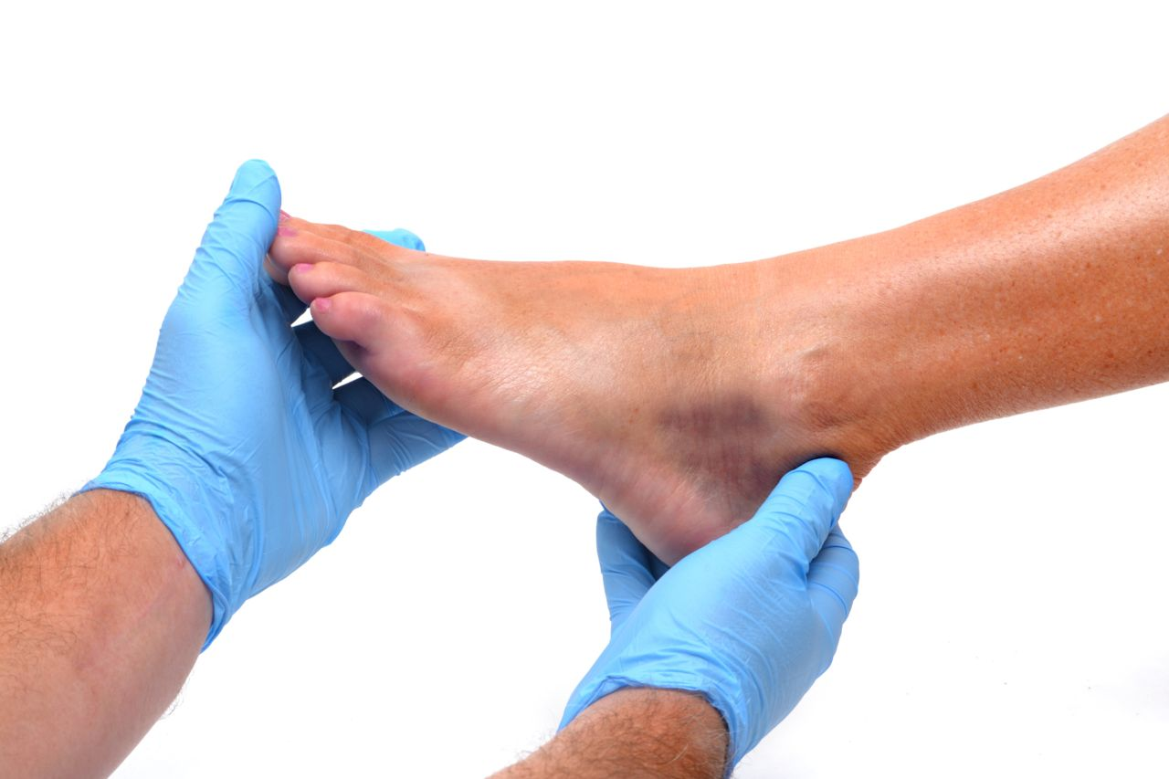 Two hands wearing blue medical gloves holding the foot of another person on white background.
