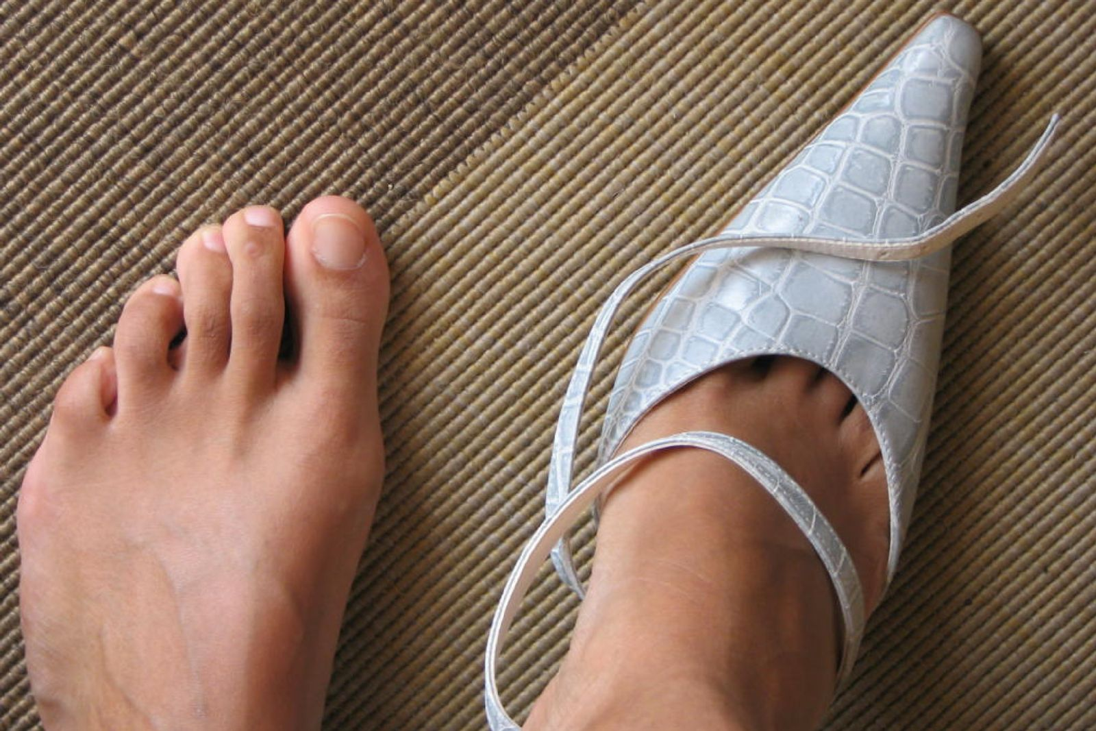 Hammertoes can make it difficult to fit into those cute, pointy-toed shoes, but that's not a reason to rush in for surgery.