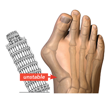 graphic image of a foot with a bunion and and unstable joint beside the leaning tower of Pisa