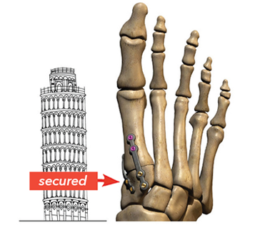 graphic image of a foot skeleton with secured joint beside the tower of pisa