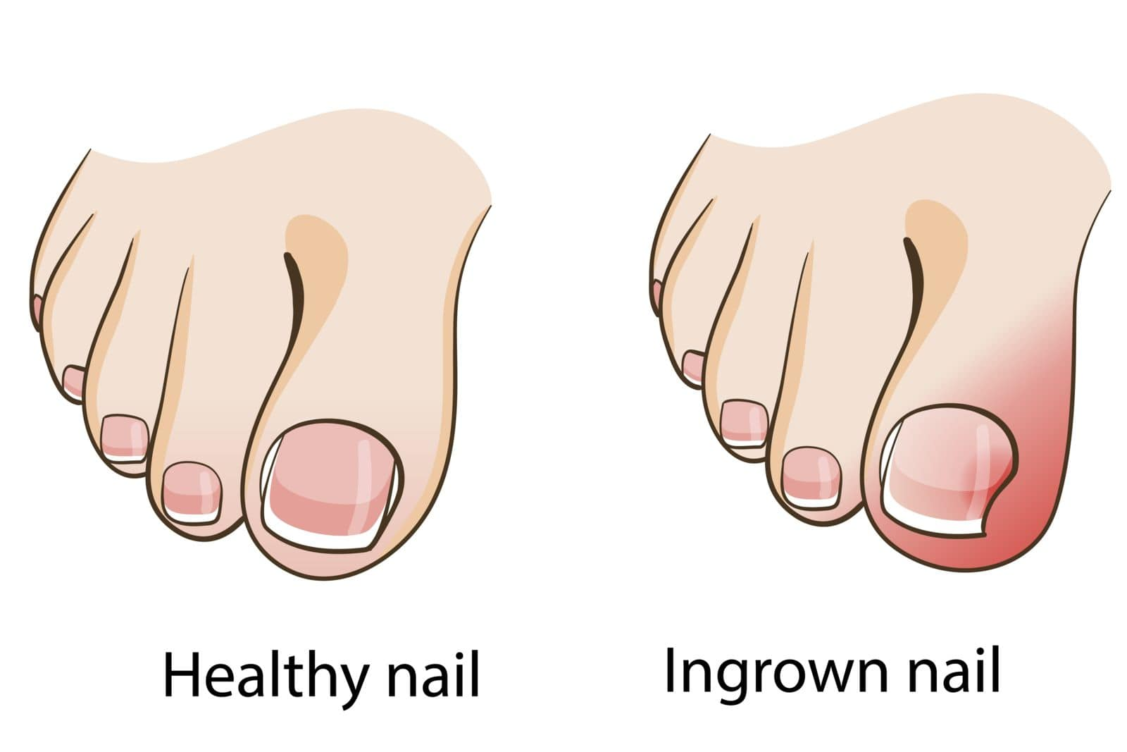 graphic drawing of a healthy nail side by side with an ingrown nail