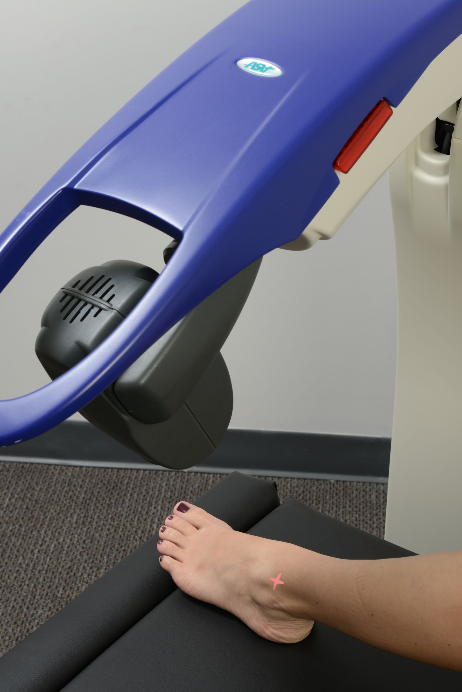 close up view of the gray head of the laser shining a red laser on the top of the ankle of a woman's foot.