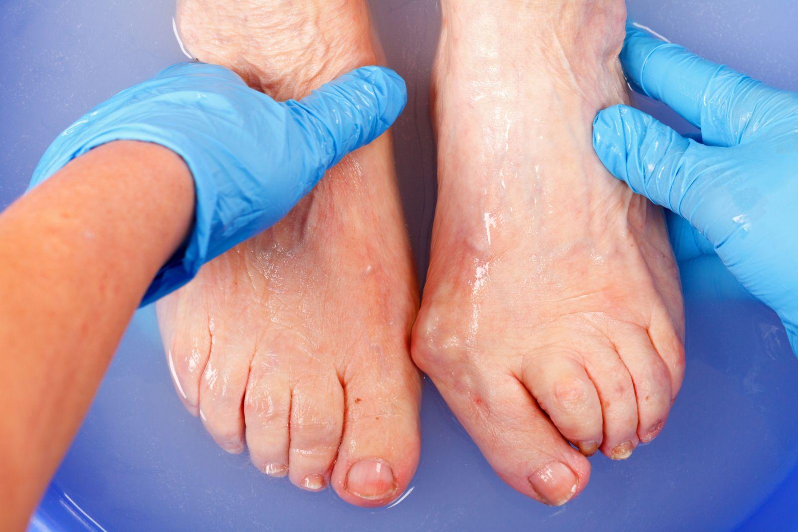 older ladies feet being held by hands wearing blue medical gloves