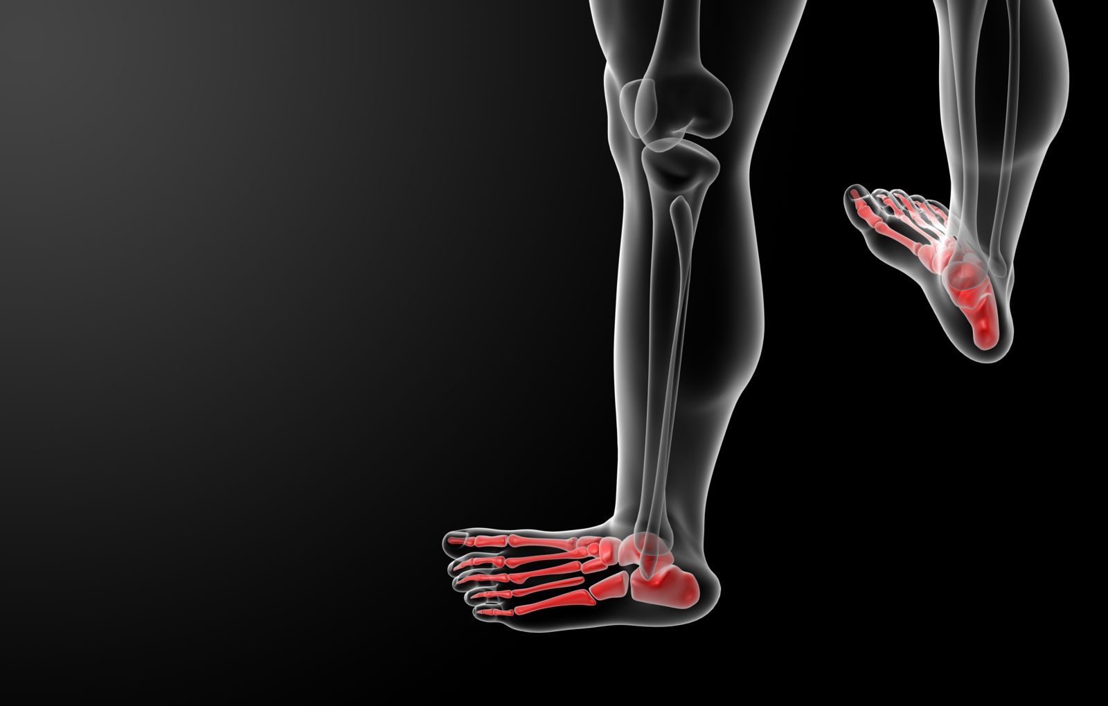 Muscular imbalances can put too much pressure on your feet, shifting bones and leading to bunion formations