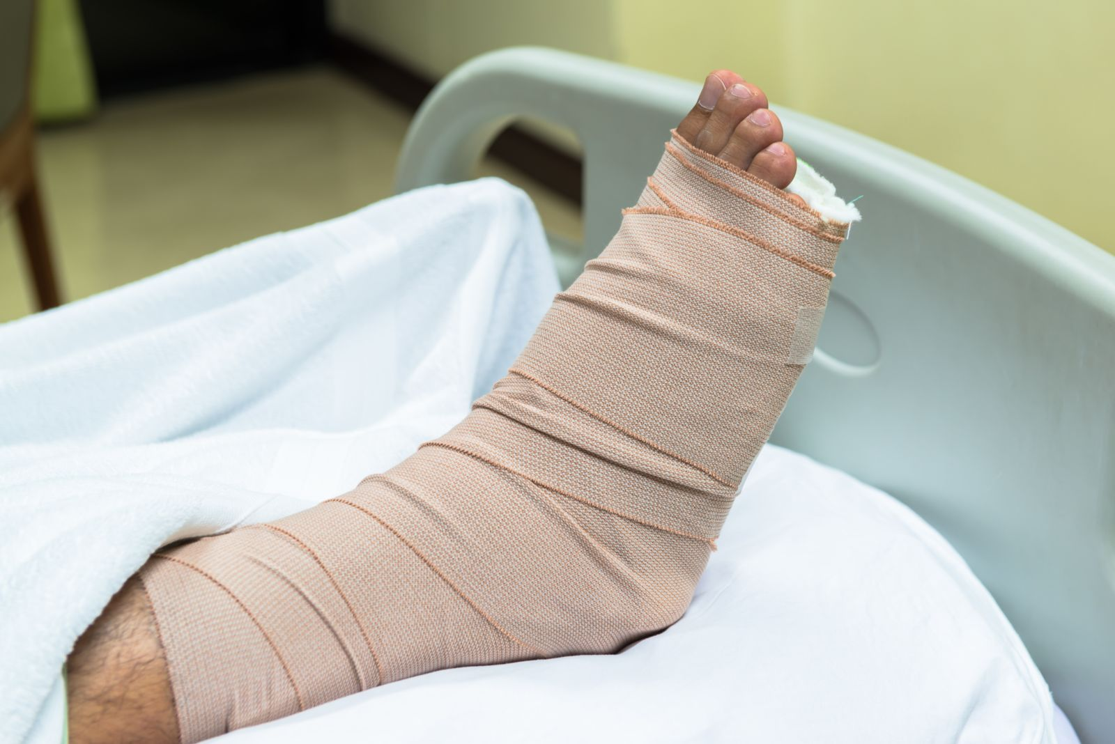 Foot elevated in splint with ace bandage