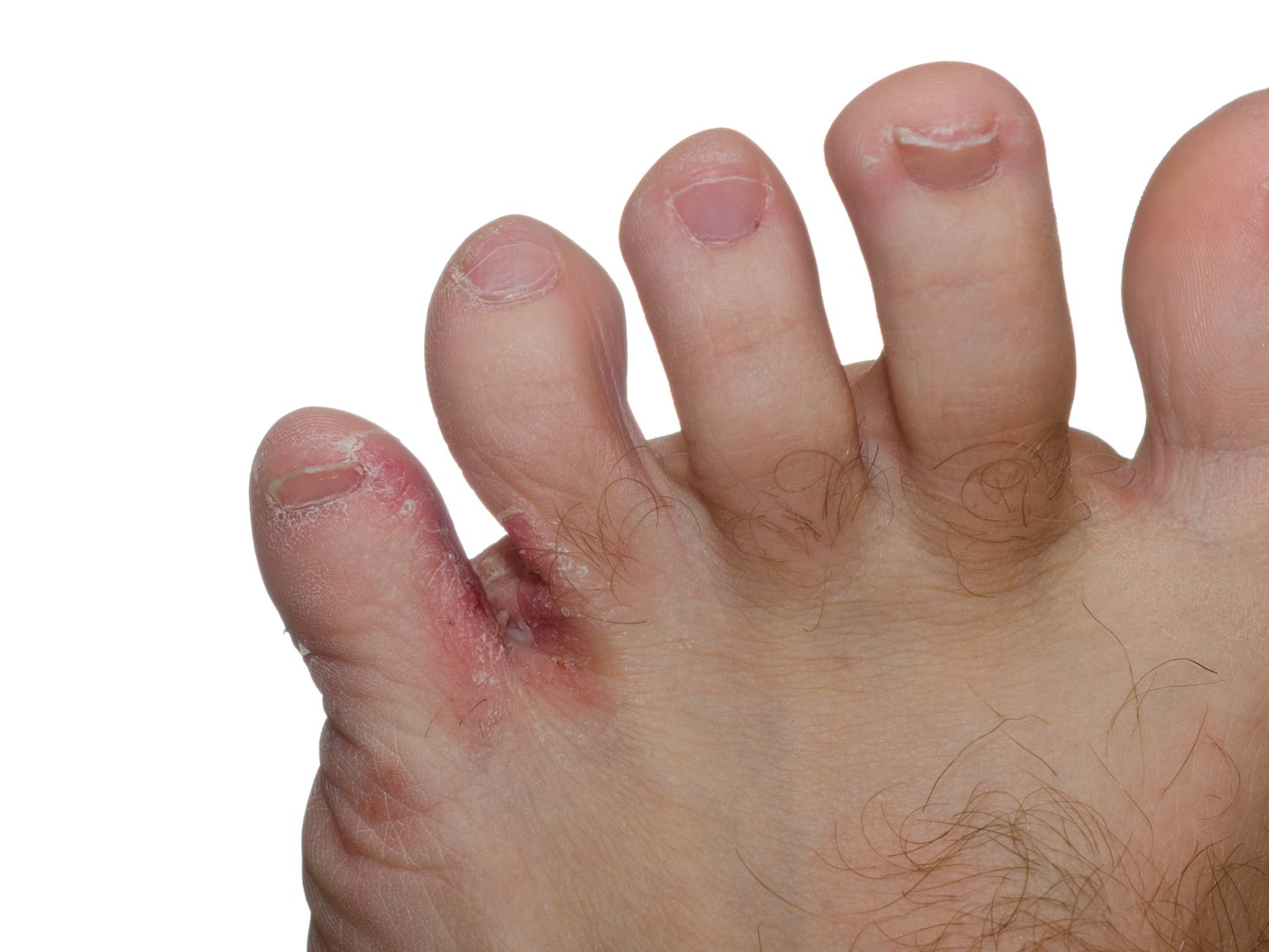 close up of 4 toes with athlete's foot infection between last two toes
