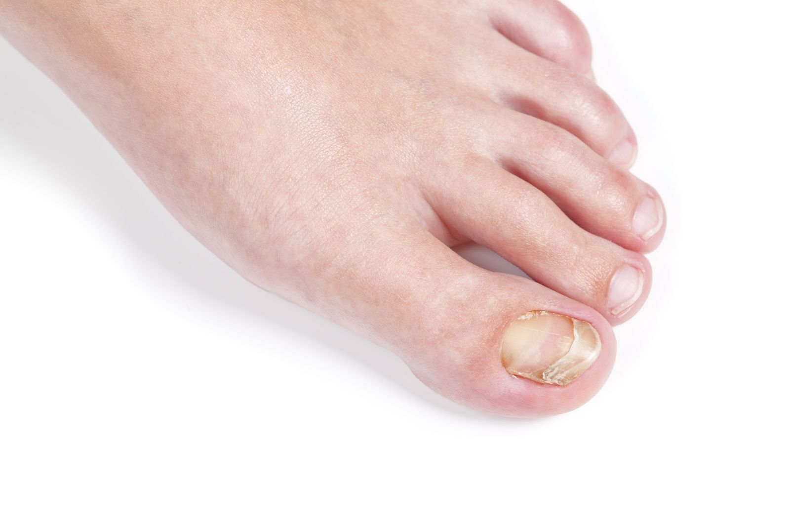 This is just one of the ways in which toenail fungus can manifest on your foot