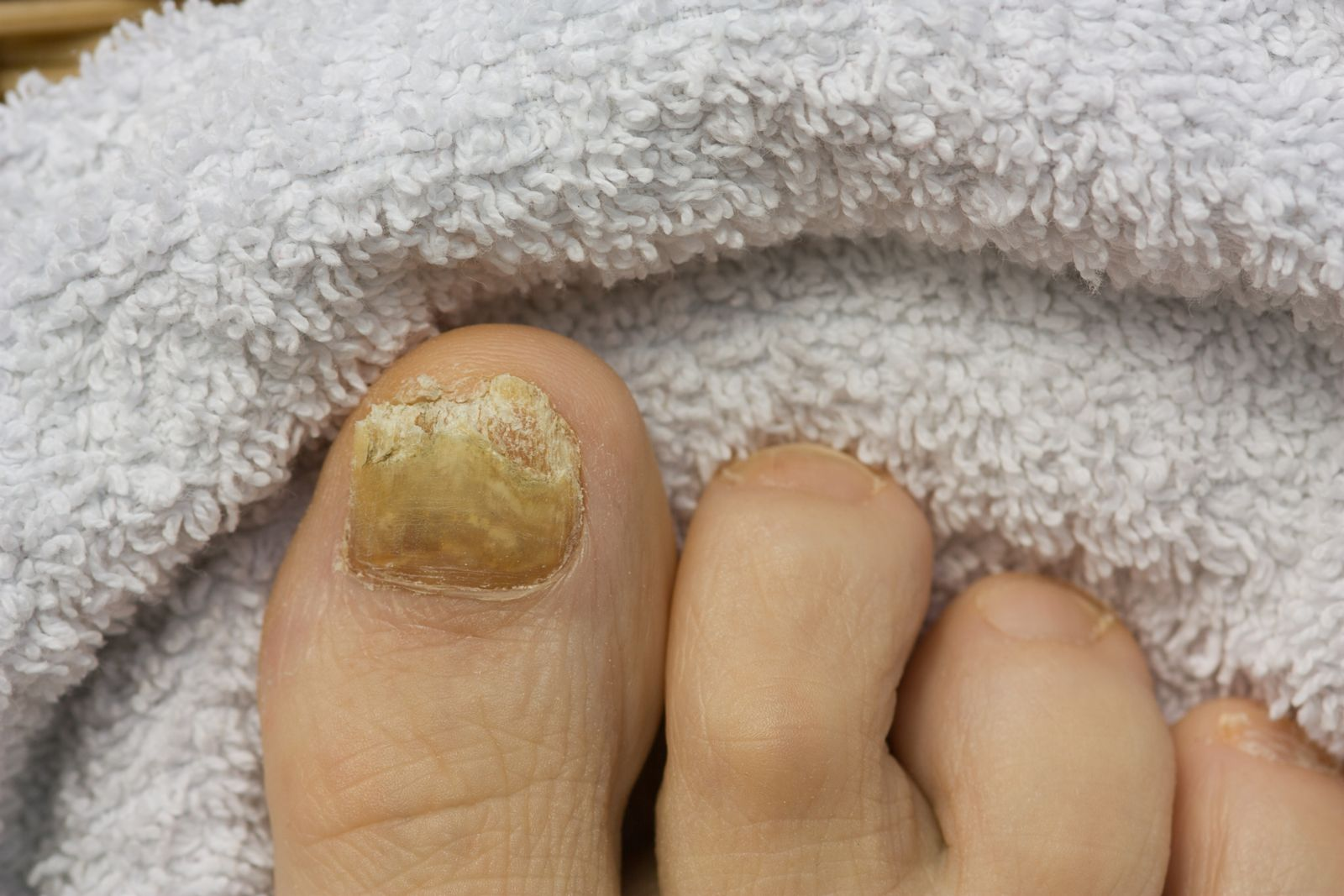 Too much polish can leave nails dry, cracked and vulnerable to fungus like this--not so pretty, right?
