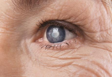 VA benefits for glaucoma & cataracts