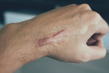 burn injury scars