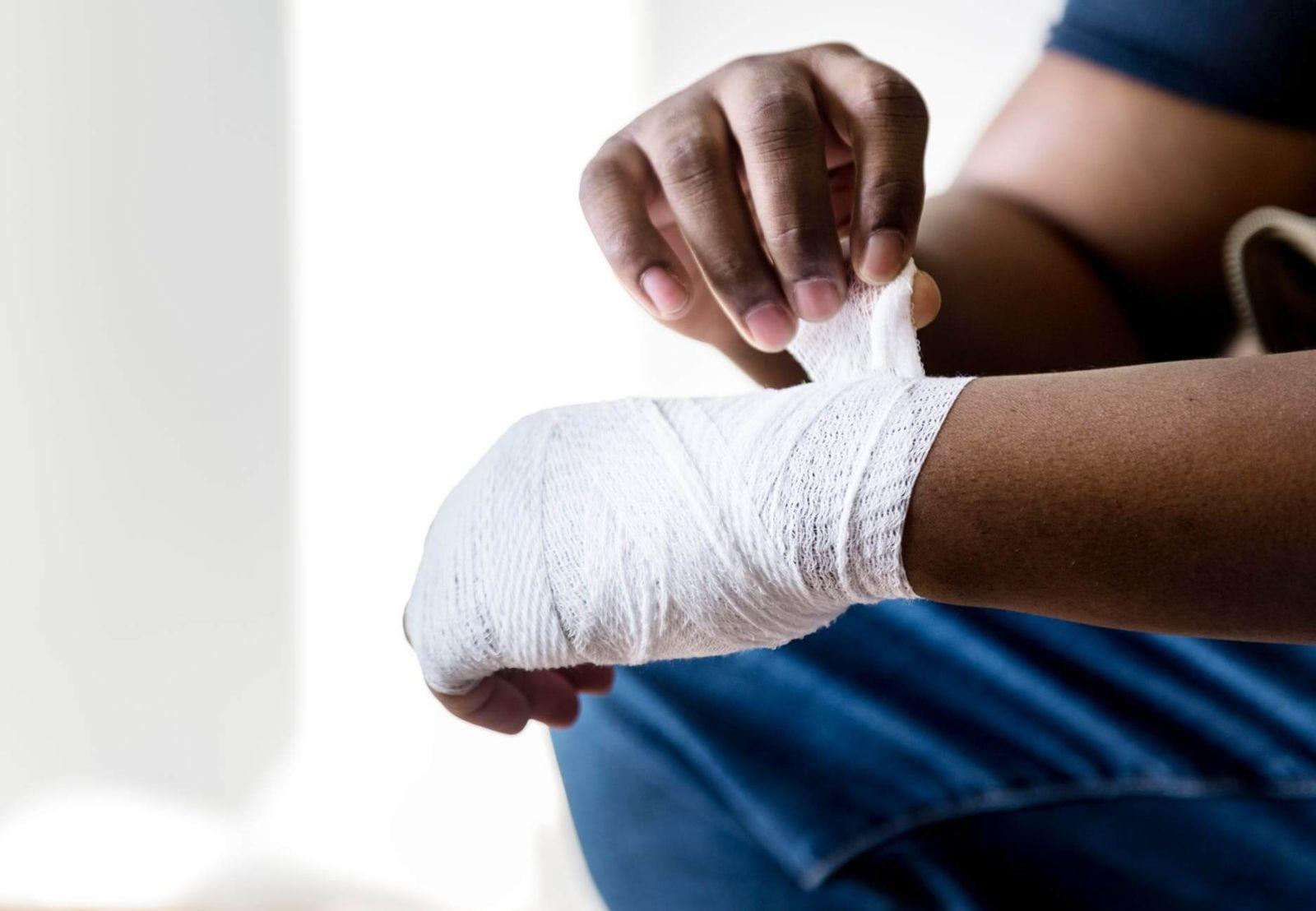 Bandaged first degree burn injury