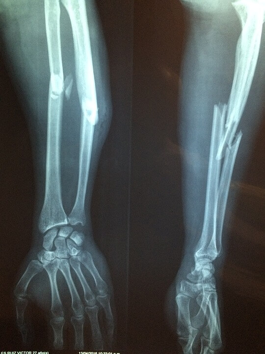 xray of broken arm