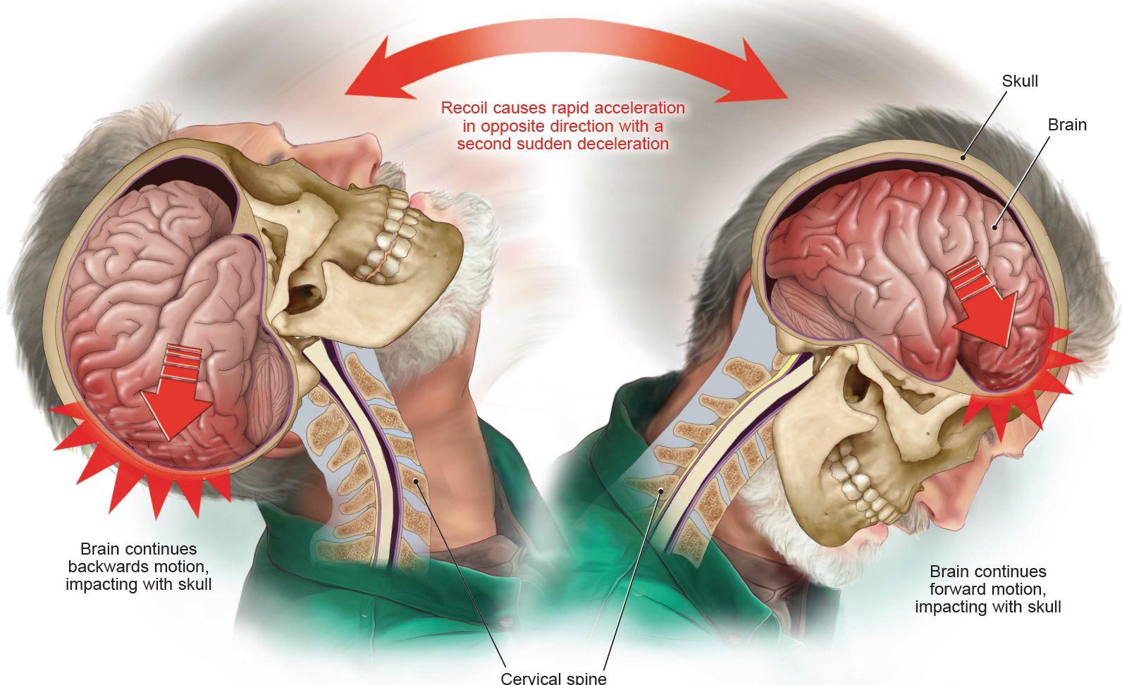 Coup-Contrecoup Client Brain Injury Settlement Virginia
