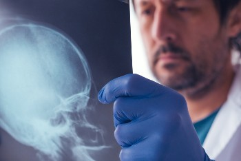 Skull fractures can be serious injuries.