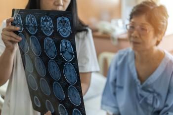 Slip & Falls often result in Traumatic Brain Injury