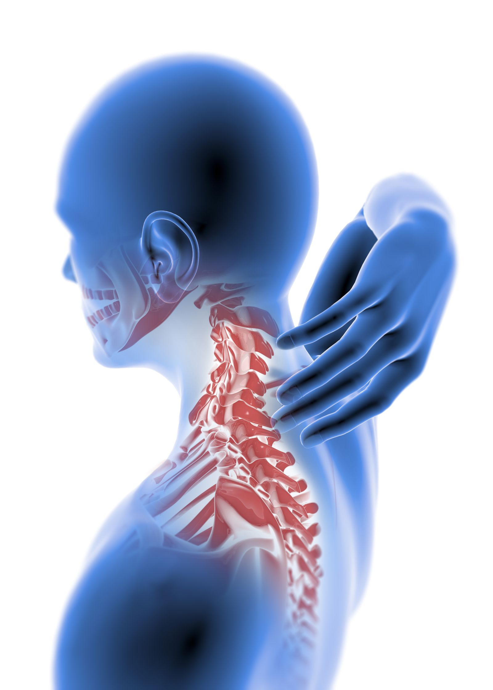 Depiction of Shoulder Pain