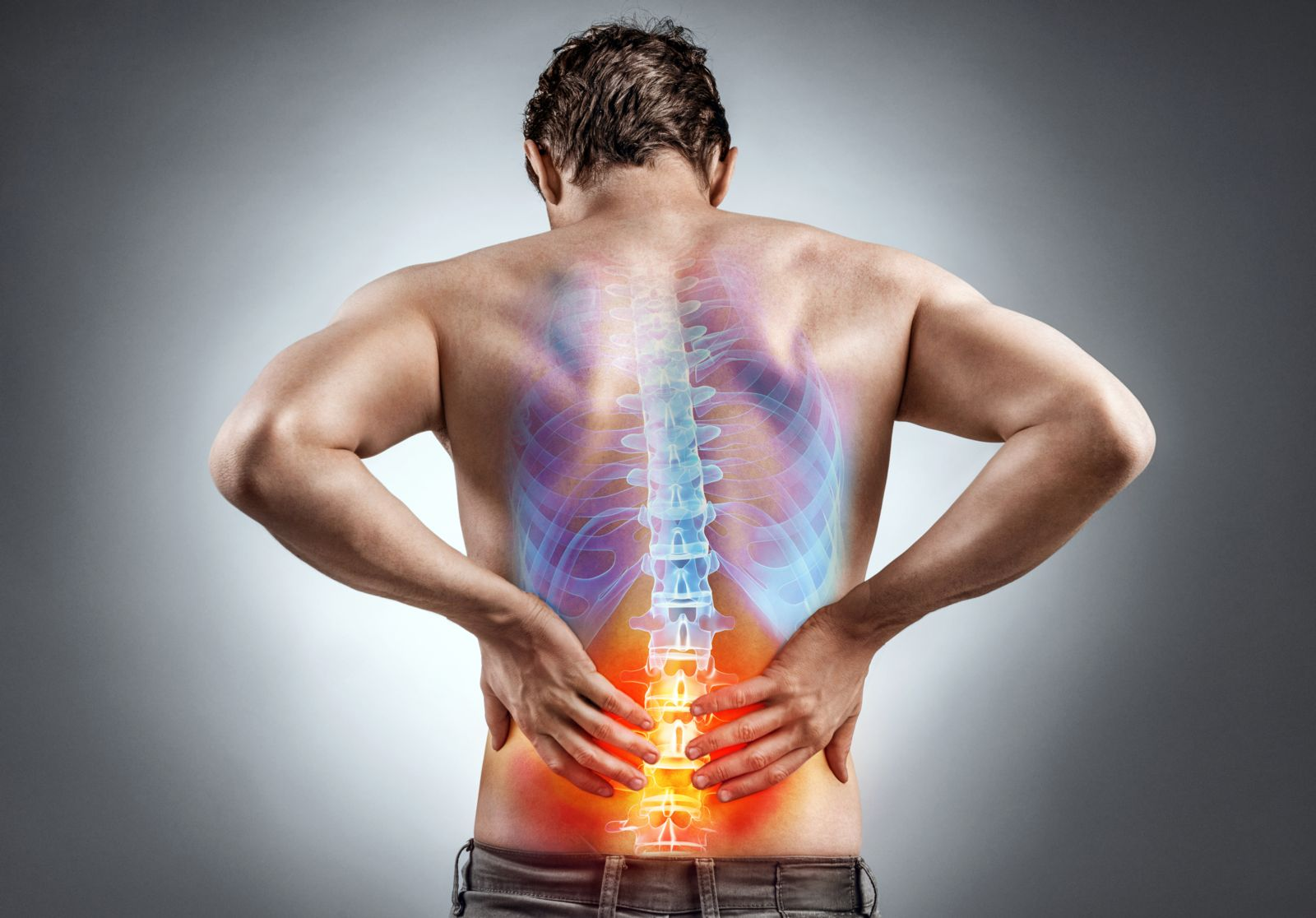 Diagram of Man With Sciatica Back Pain