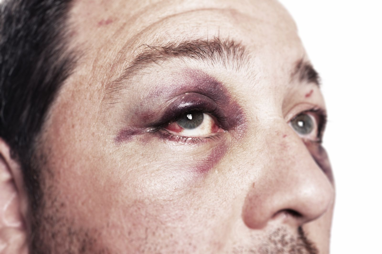 Man With Eye and Facial Injuries
