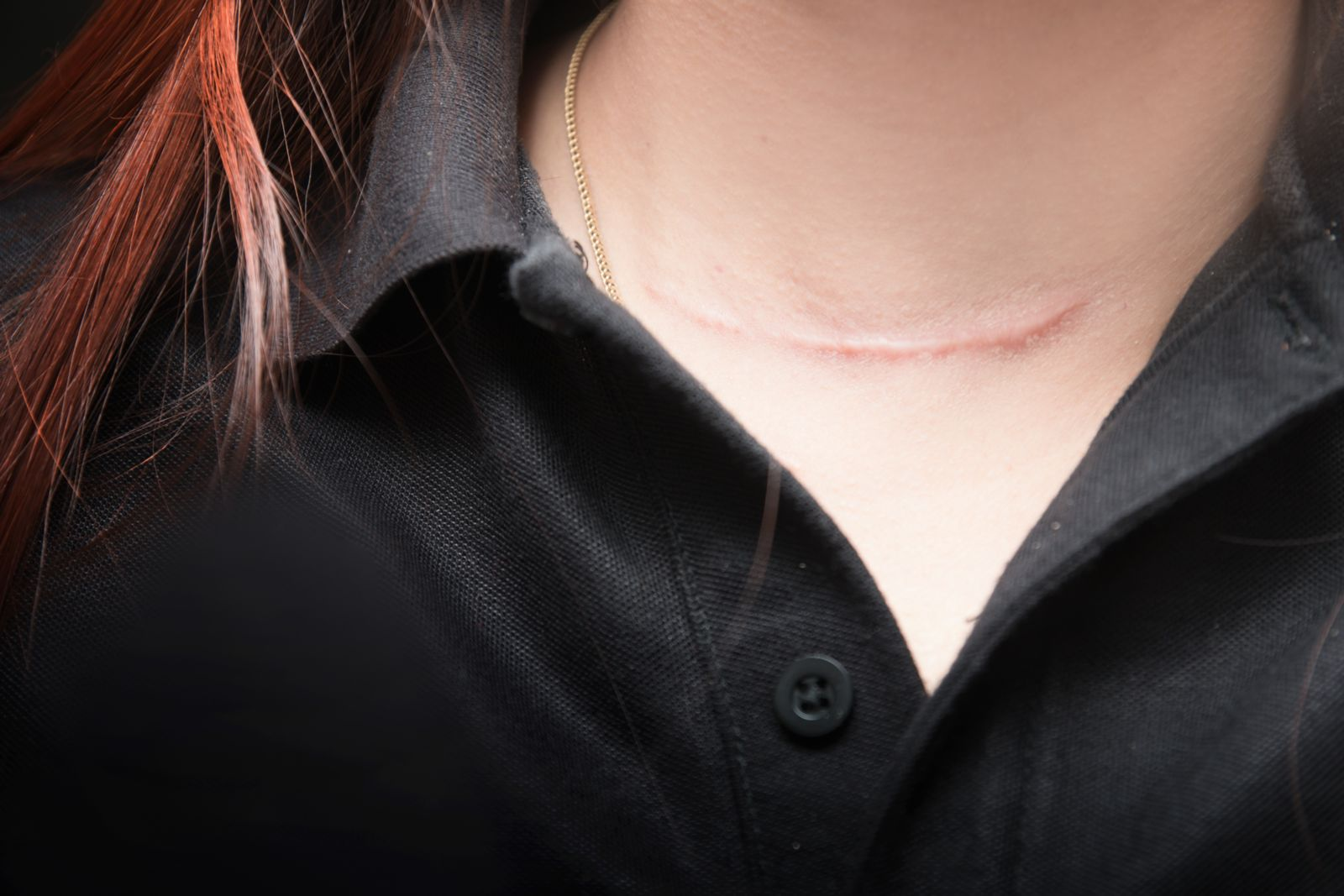 Woman's Neck With Scar