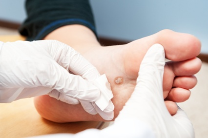 podiatrist treating diabetic foot ulcer