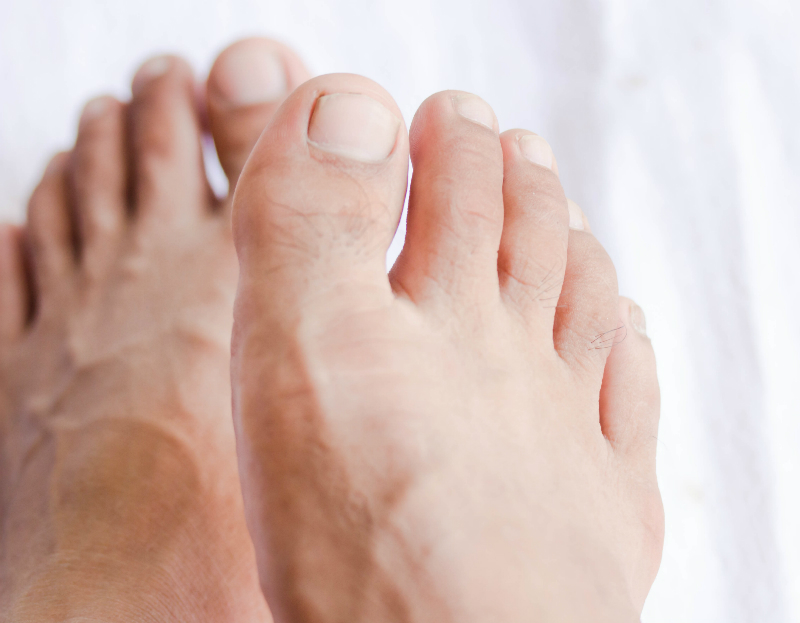 Everything You Need to Know About Ingrown Toenails | Richardson ...