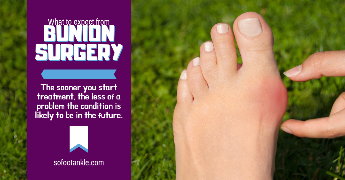 what to expect from bunion surgery
