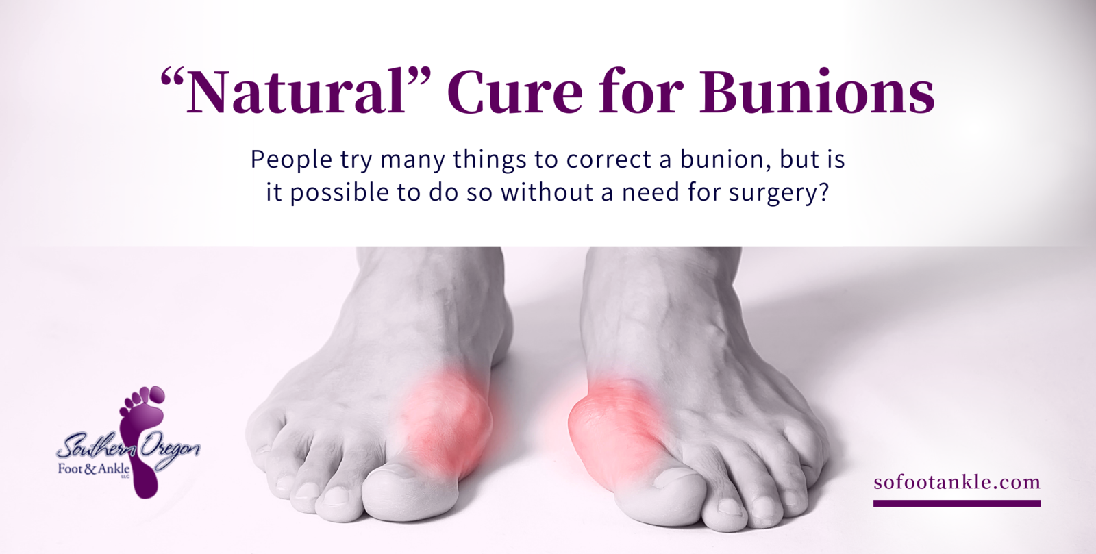 a natural cure for bunions