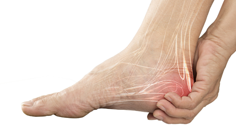 Nerve pain in foot