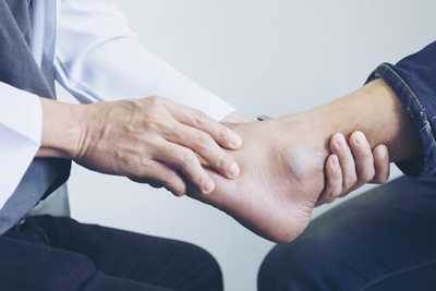 atlanta ankle injury lawyer