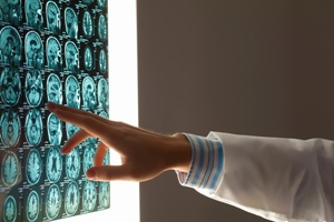 doctor looking at brain injury scans