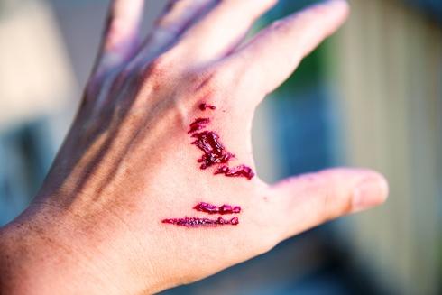 dog bite injury on hand