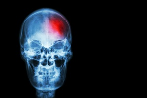 image of skull with injured brain in red