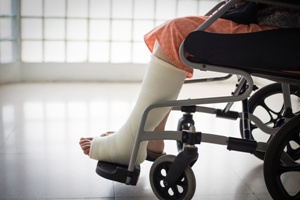 woman in wheelchair with leg cast